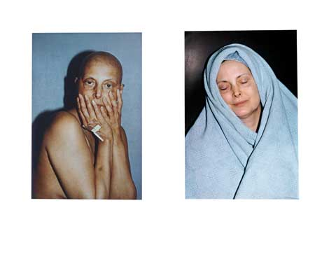 Hannah Wilke, Intra-Venus Series #4, July 26 and February 19, 1992, 1992–3, Performalist Self-Portrait with Donald Goddard, Courtesy Donald and Helen Goddard and Ronald Feldman Fine Arts, New York, NY